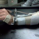 Dynamic Wrist Extnsion Splint