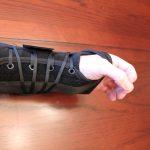 Wrist Lacer Splint
